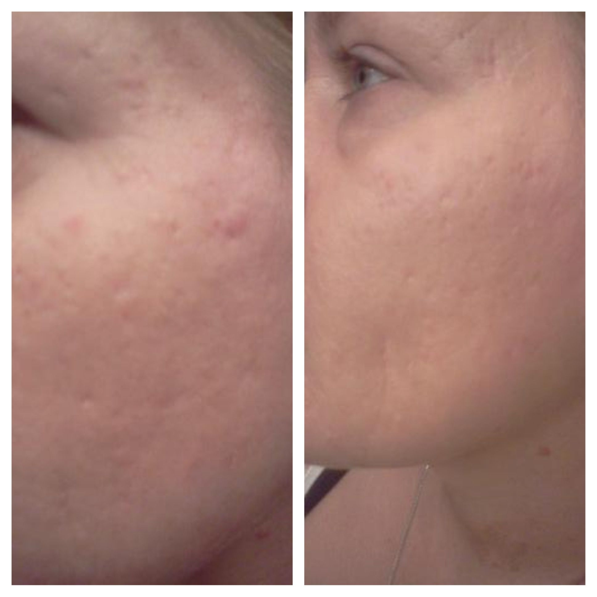 Look At These Results Before And After 5 Days Of Using Nerium Dereknmelissa Nerium Com Laser Skin Resurfacing
