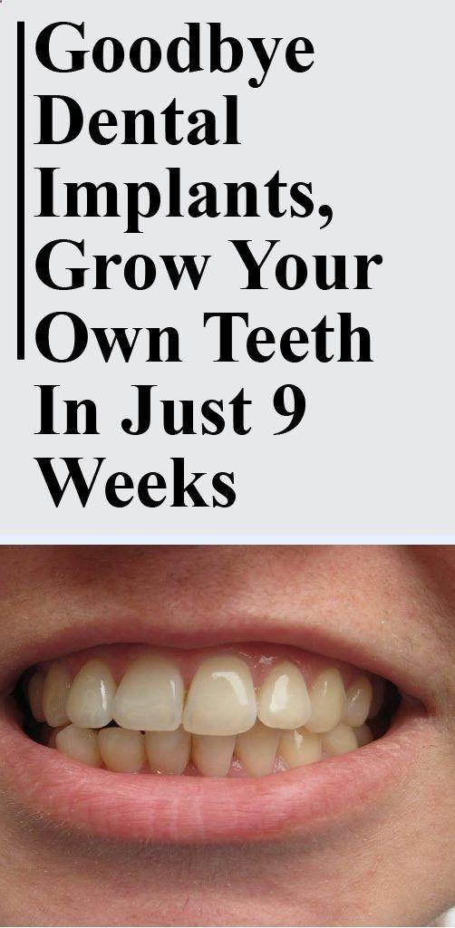 Goodbye Dental Implants, Grow Your Own Teeth In Just 9 Weeks – BEAUTY AIDS