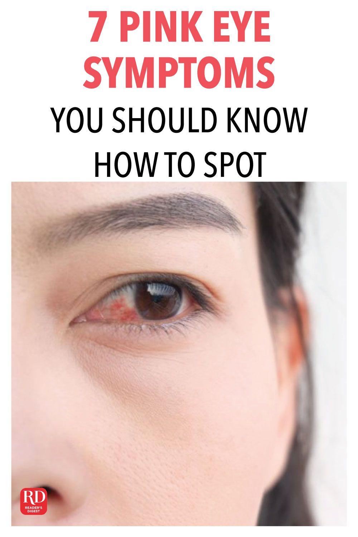 Eye Allergies Causes And Symptoms Eye Allergies Allergy Eyes Eye Allergy Symptoms
