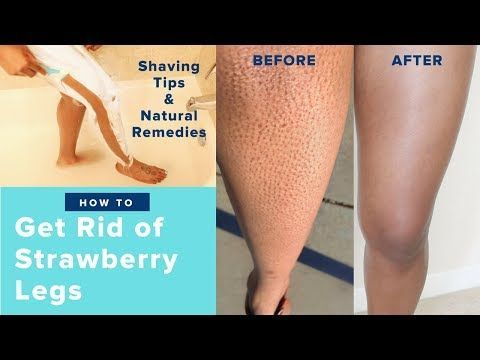 how to get rid of strawberry legs fast like a boss  easy