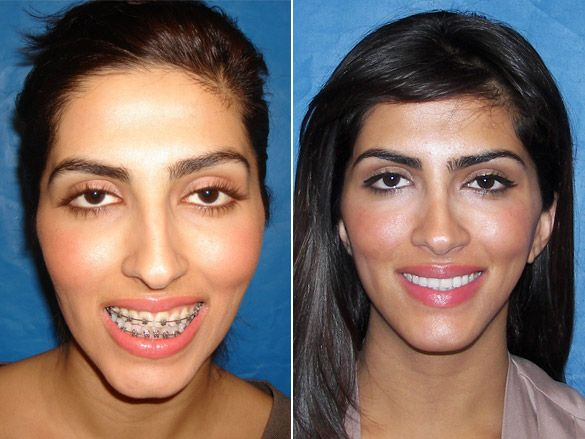 Orthognathic Surgery Alternative. You do not need your jaw broken ...