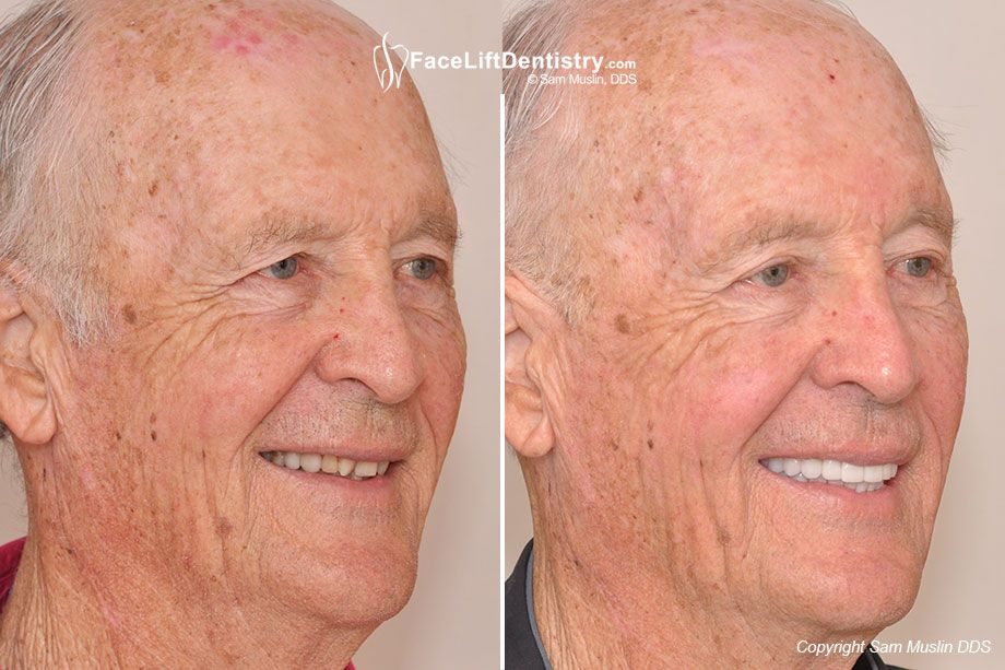 Overbite correction and antiaging dentistry dentistry