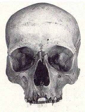 Foro soy protesico :: Ver tema - Museo Virtual de Prótesis Dental