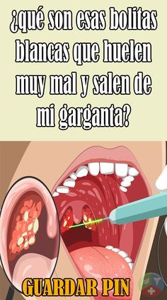 Qué Son Esas Bolitas Blancas Que Huelen Muy Mal Y Salen De Mi Garganta Grow Back Receding Gums Women Health Care Best Hair Vitamins