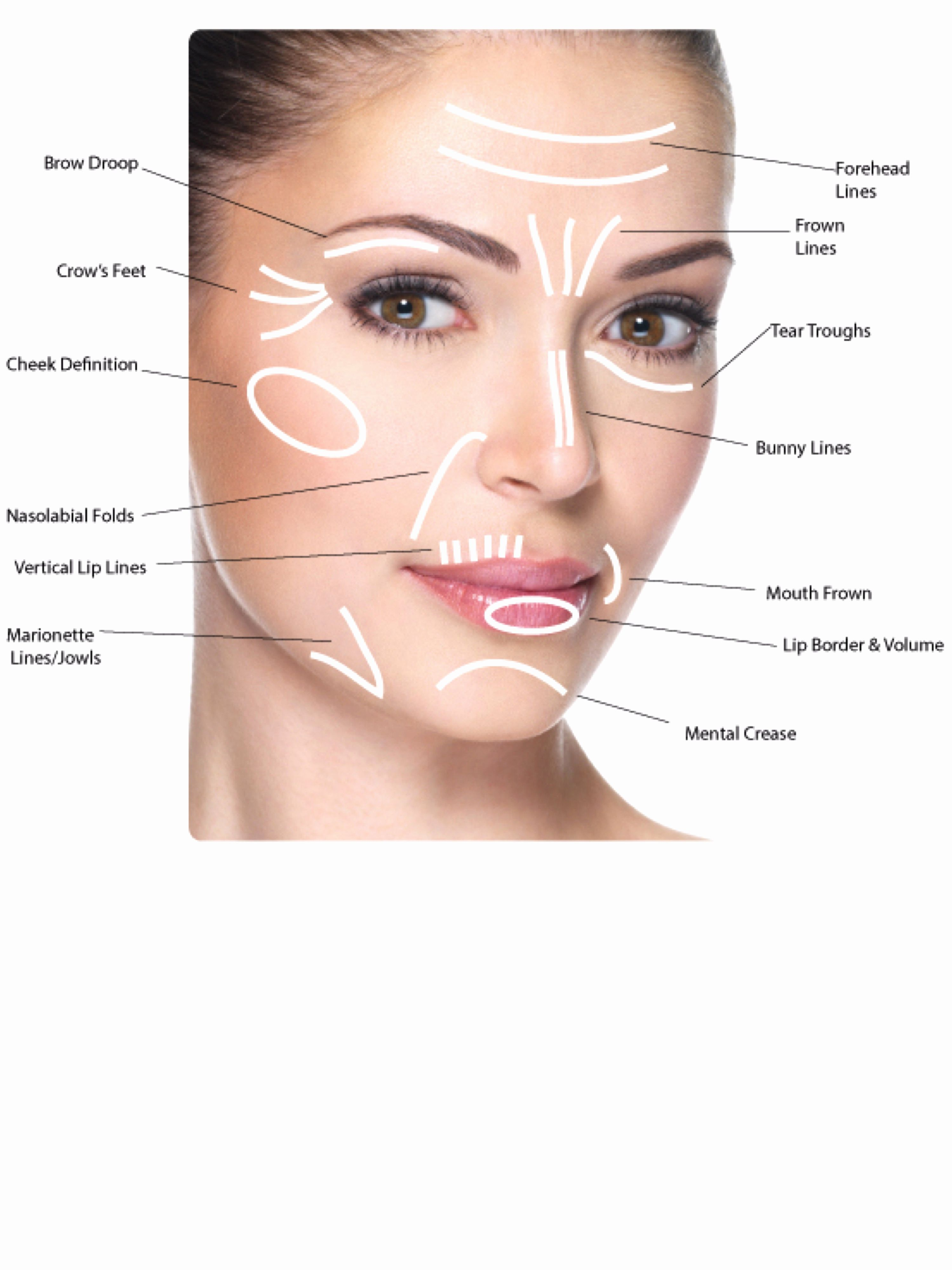 botox injection sites face diagram cosmetic procedures in 2019 botox injection sites. Black Bedroom Furniture Sets. Home Design Ideas