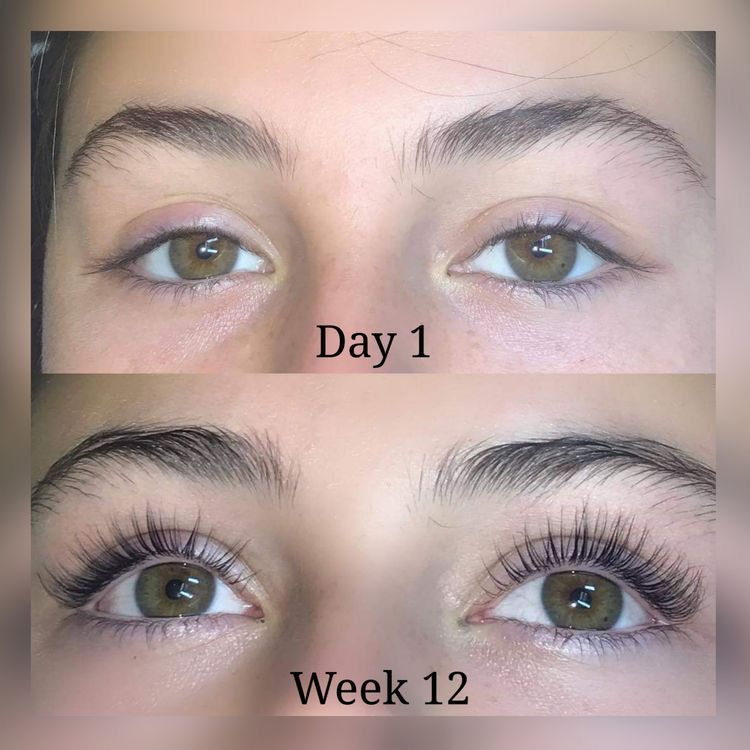 Amazing eyelash serum results before and after in 2020