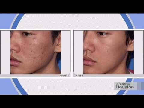 Pin On Facial Procedures