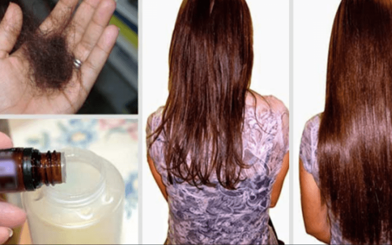 Just Add These Two Ingredients To Your Shampoo And Say Goodbye To Hair Loss Forever Health Beauty Sky Hair Loss Causes Hair Loss Remedies Stop Hair Loss