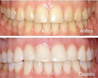 Clareamento Dental Como Clarear Os Dentes Com Agua Oxigenada 90 Das