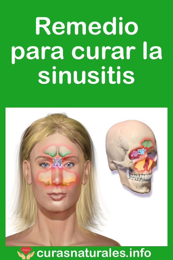 medicina natural para curar la sinusitis