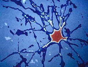 TU SALUD: Cada día nacen 1.400 nuevas neuronas en el cerebro...