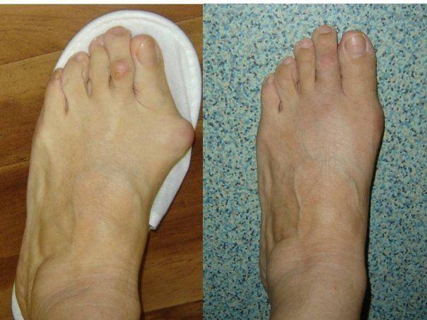 artrita femeie deget de la picior)