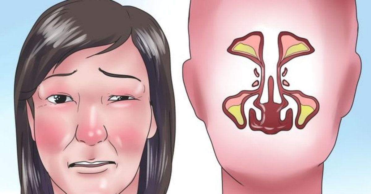 how to get rid of a stuffy nose instantly