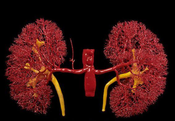La vascularización renal. Imagen de Visuals Unlimited | Imágenes de ...