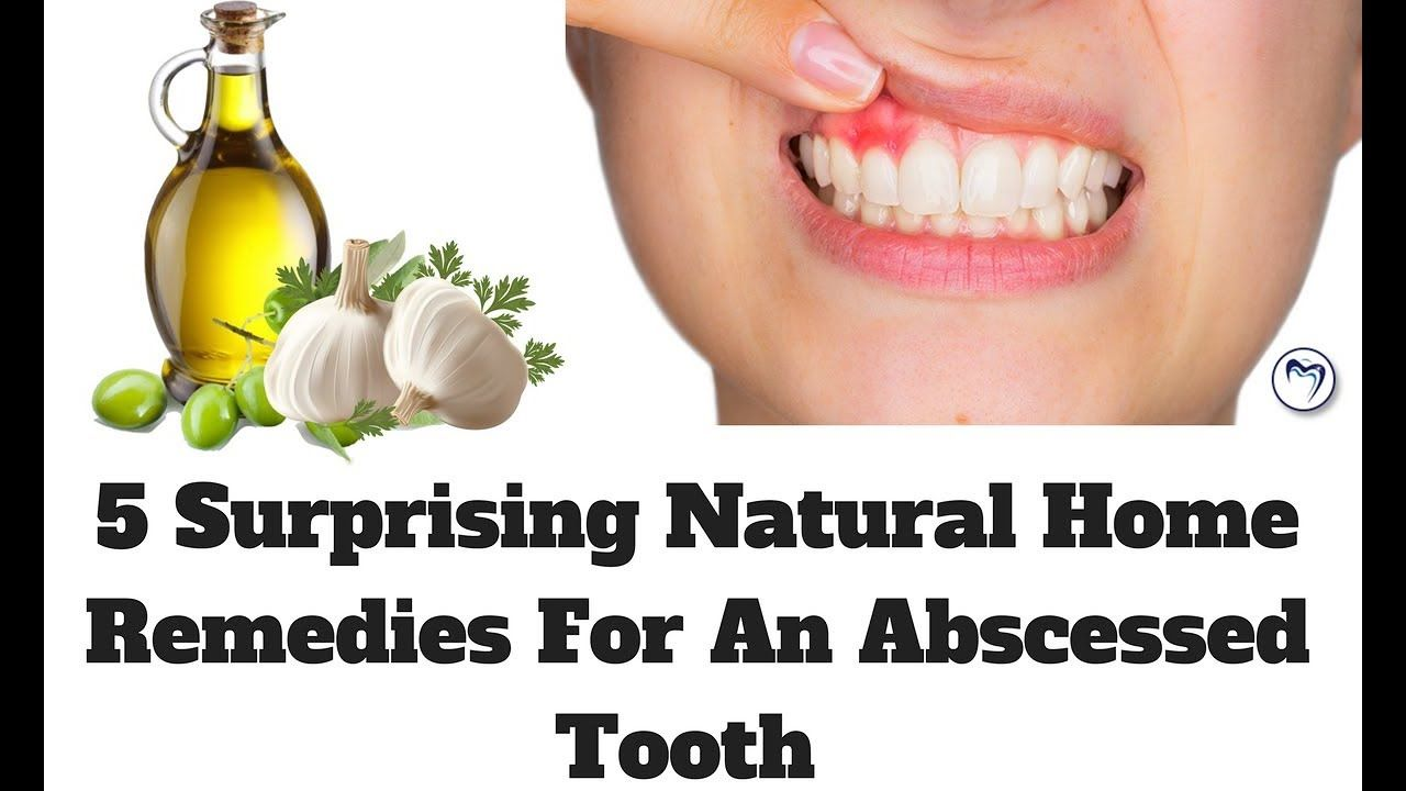 5 surprising natural home remedies for an abscessed tooth