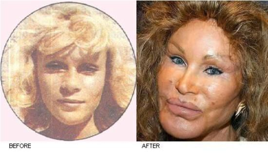 second image for Jocelyn Wildenstein Plastic Surgery Gone Wrong with Jocelyn Wildenstein Plastic Surgery Before And After ...
