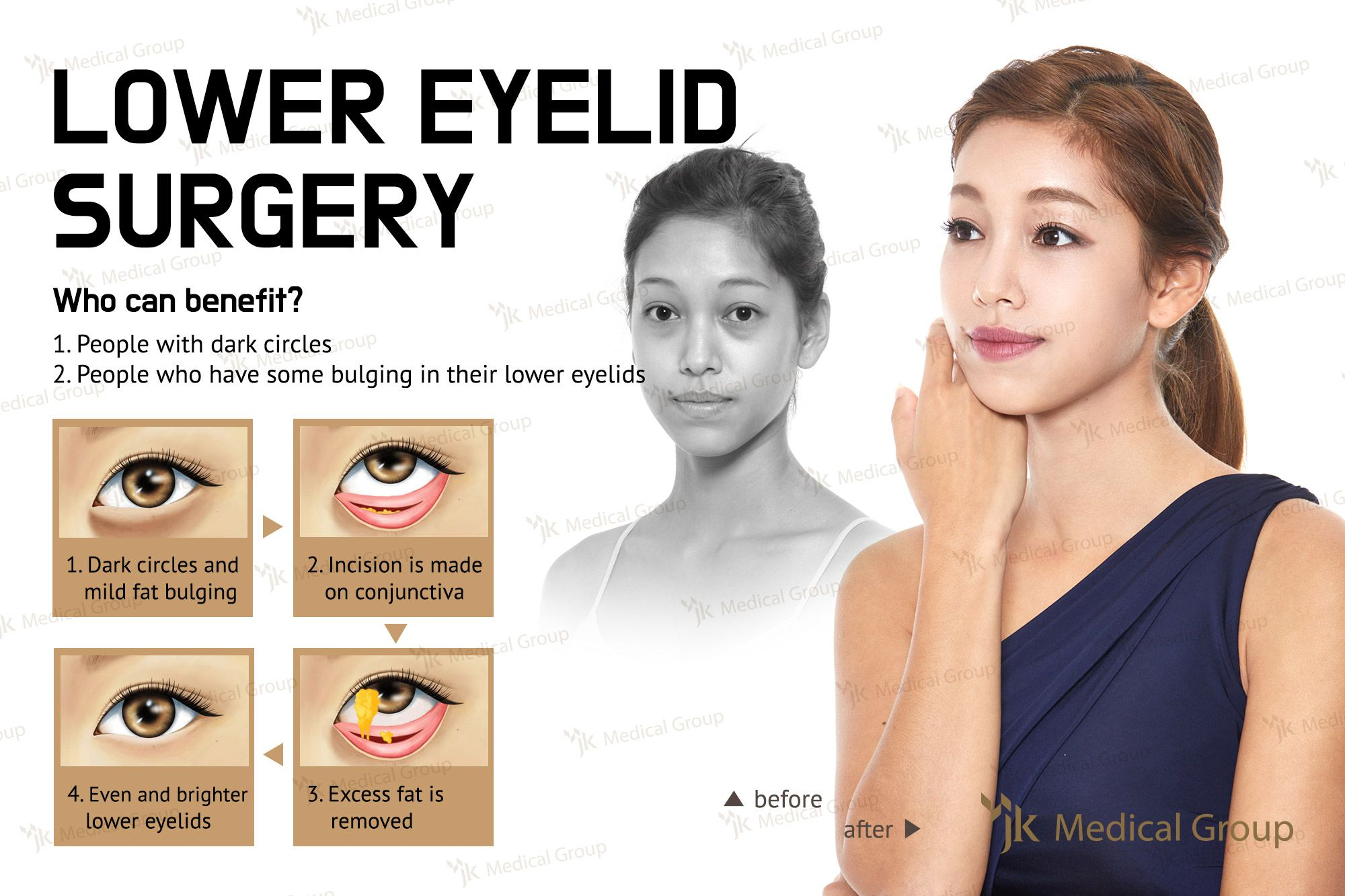 south korea plastic surgery eye Health Pictures of Surgery