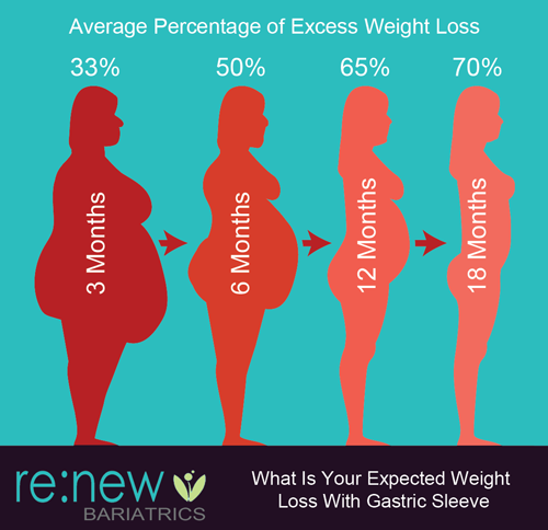 Gastric Sleeve Weight Loss Gastric Sleeve In 2019 Pinterest