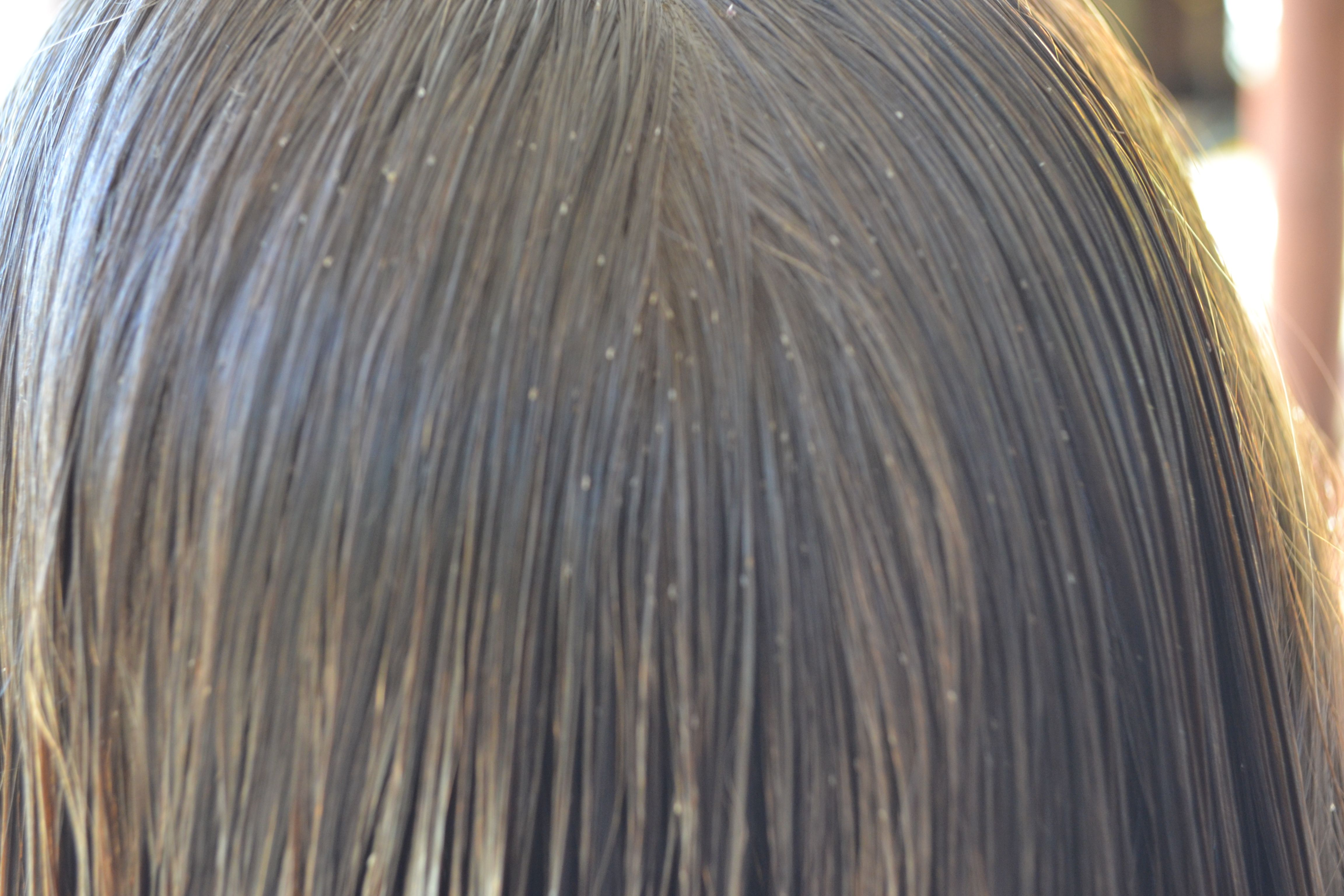 Nit Pickers Head Lice Removal This Lady Works Magic Lice Removal Head Louse Head Lice Removal