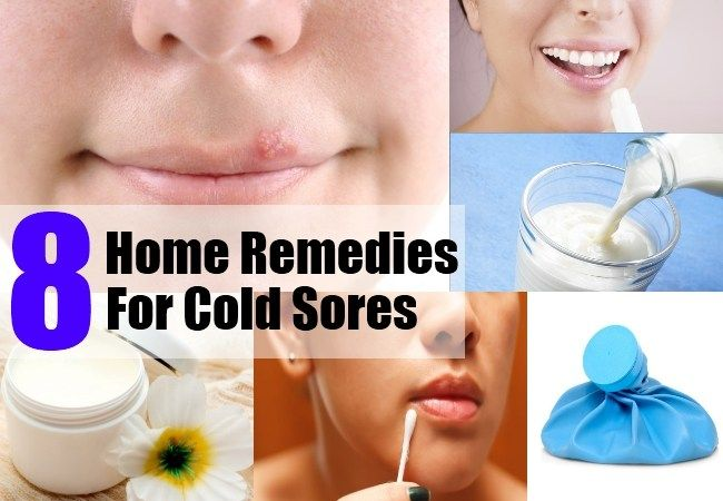 8 Home Remedies For Cold Sores   Remedies for cold soars