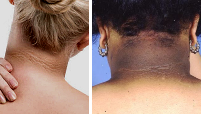 5 Tratamientos Naturales Para Aclarar El Cuello Oscuro Quitar Manchas Manchas Oscuras En La Piel Tips Belleza