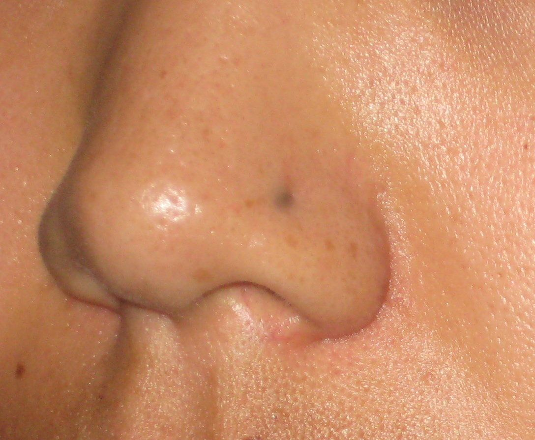 b57dc286a6fe59bf8f4dd4216938f2cd - How To Get Rid Of Black Dots On Your Nose