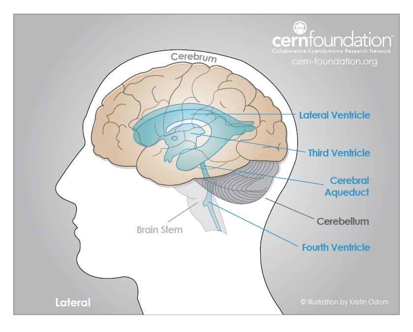 Sometimes, tumor cells can spread in the cerebrospinal fluid (CSF ...