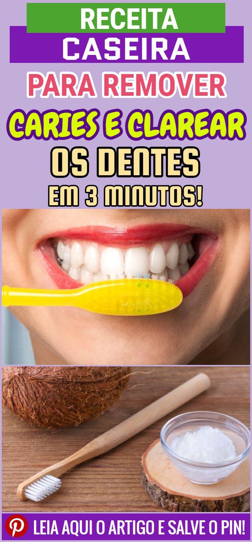 Receita Para Remover Caries E Clarear Os Dentes Em 3 Minutos Dicas