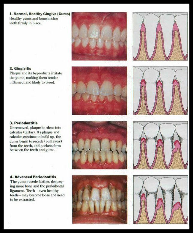Diagram Showing The Progression Of  Gum Disease