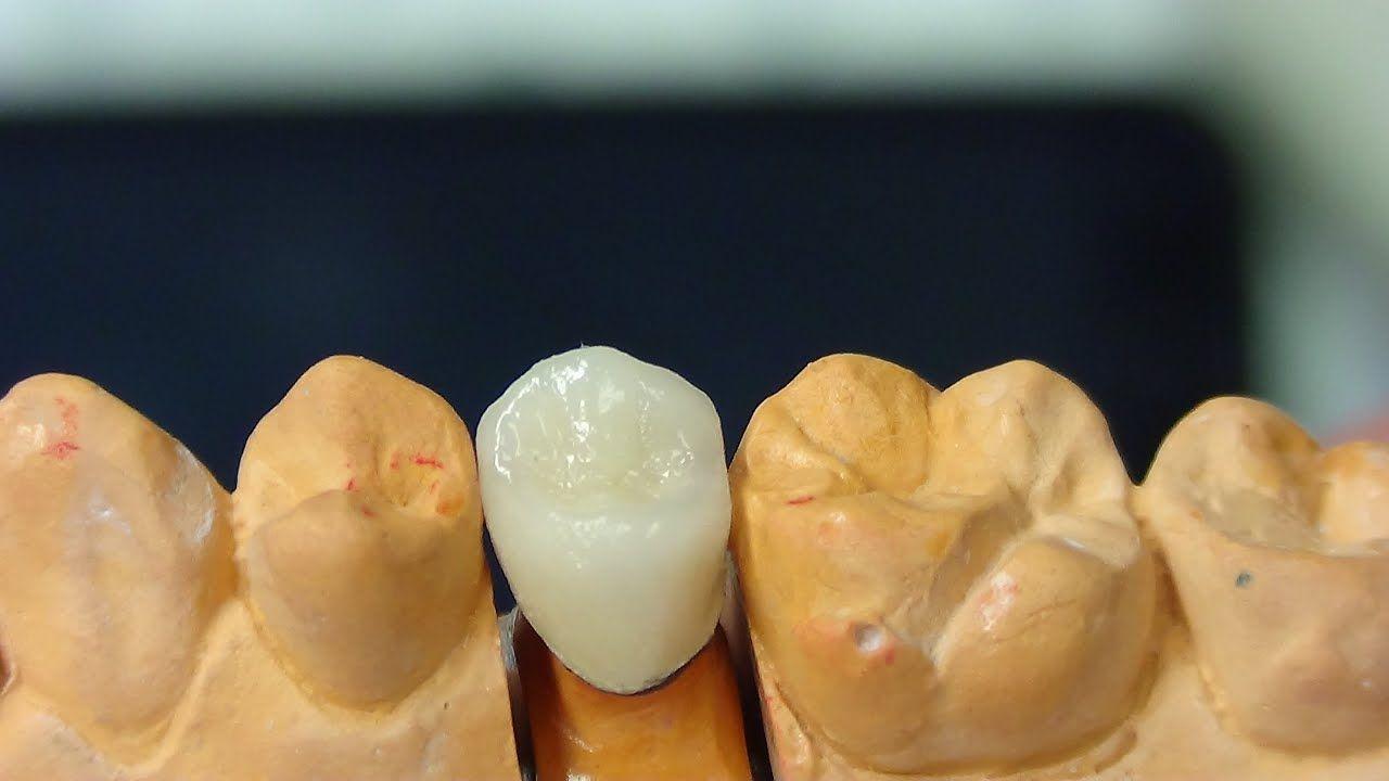 Power Dentine Build Up Youtube Dental Ceramics Dental Laboratory Dental Lab
