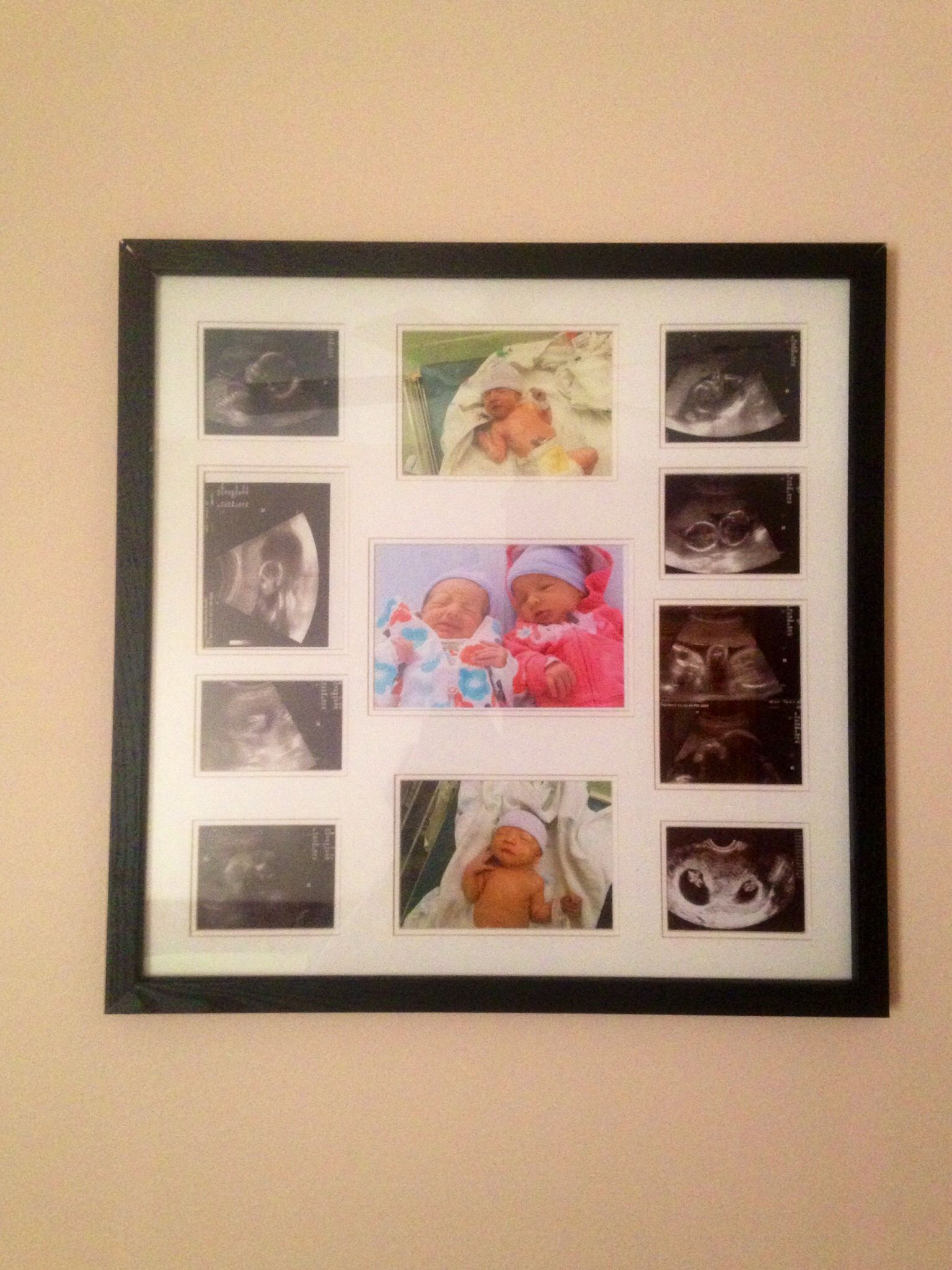 A Cute Simple Way To Show Off Ultrasound Pictures A Collage