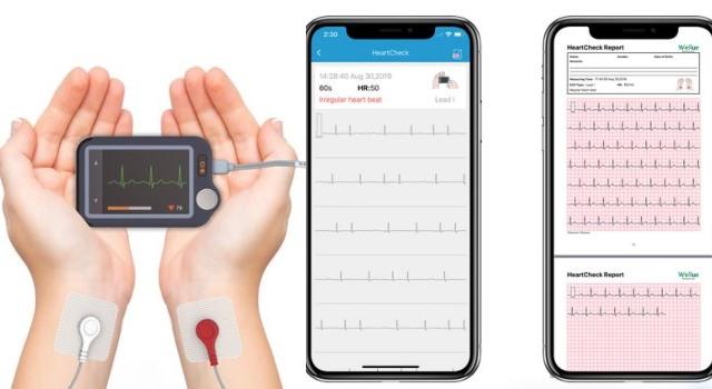 Wellue Pulsebit EX App Smart EKG Monitor in 2020 Ekg