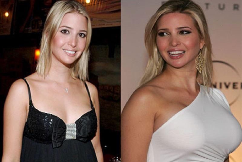 celebrity ivanka trump plastic surgery chin implants