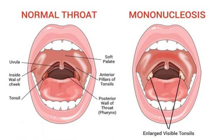 Remedios Caseros Que Te Ayudaran A Tratar La Mononucleosis