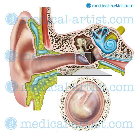 Tympanic Membrane Anatomy Tympanic Membrane Anatomy Illustration
