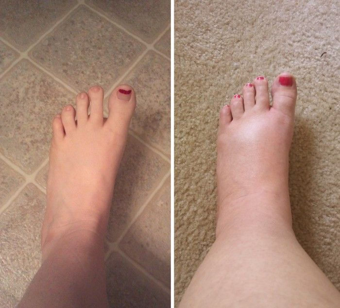 how to get swelling down in ankle