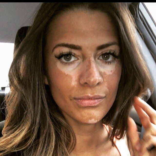 After Years Of Covering Up Her Skin This Model With Vitiligo Is Revealing Her Natural Beauty In 2020 Vitiligo Treatment Vitiligo Vitiligo Skin