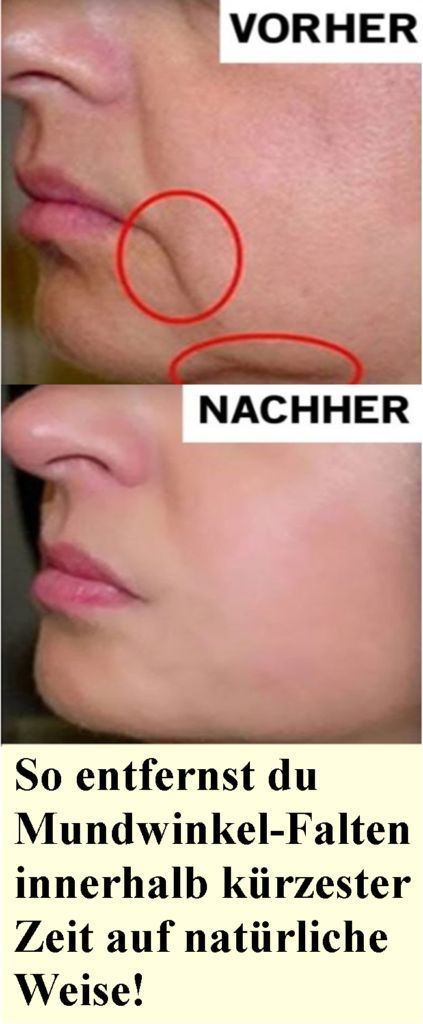 Photo of How to remove corner wrinkles in no time at all …