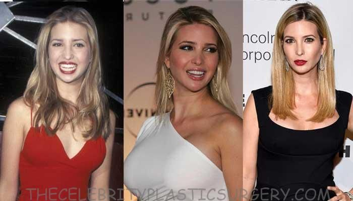 Latest Ivanka Trump After Plastic Surgery 5 Ivanka Trump Style Celebrity Plastic Surgery Ivanka Trump