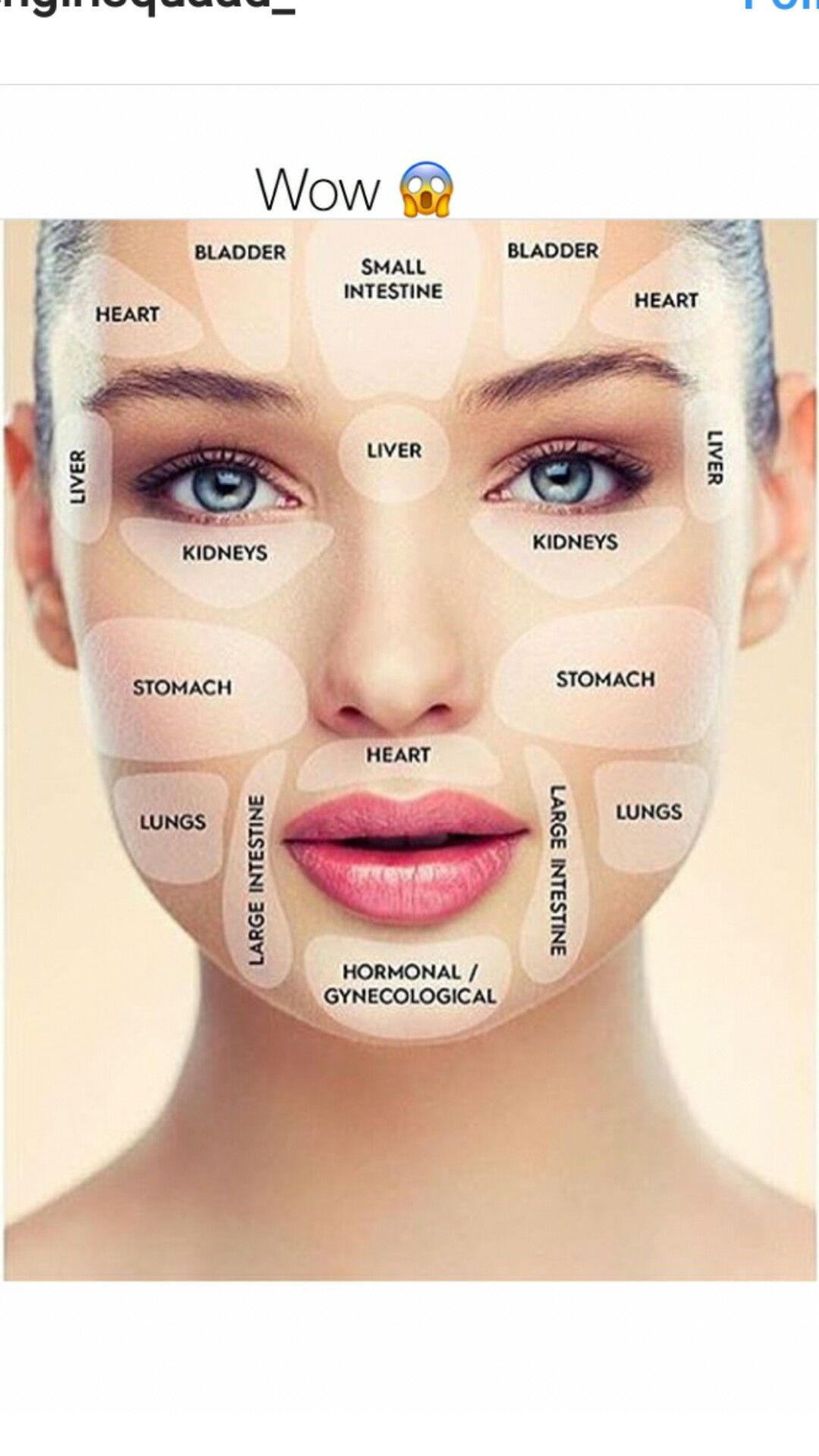 Acne causes chart also seatle davidjoel rh