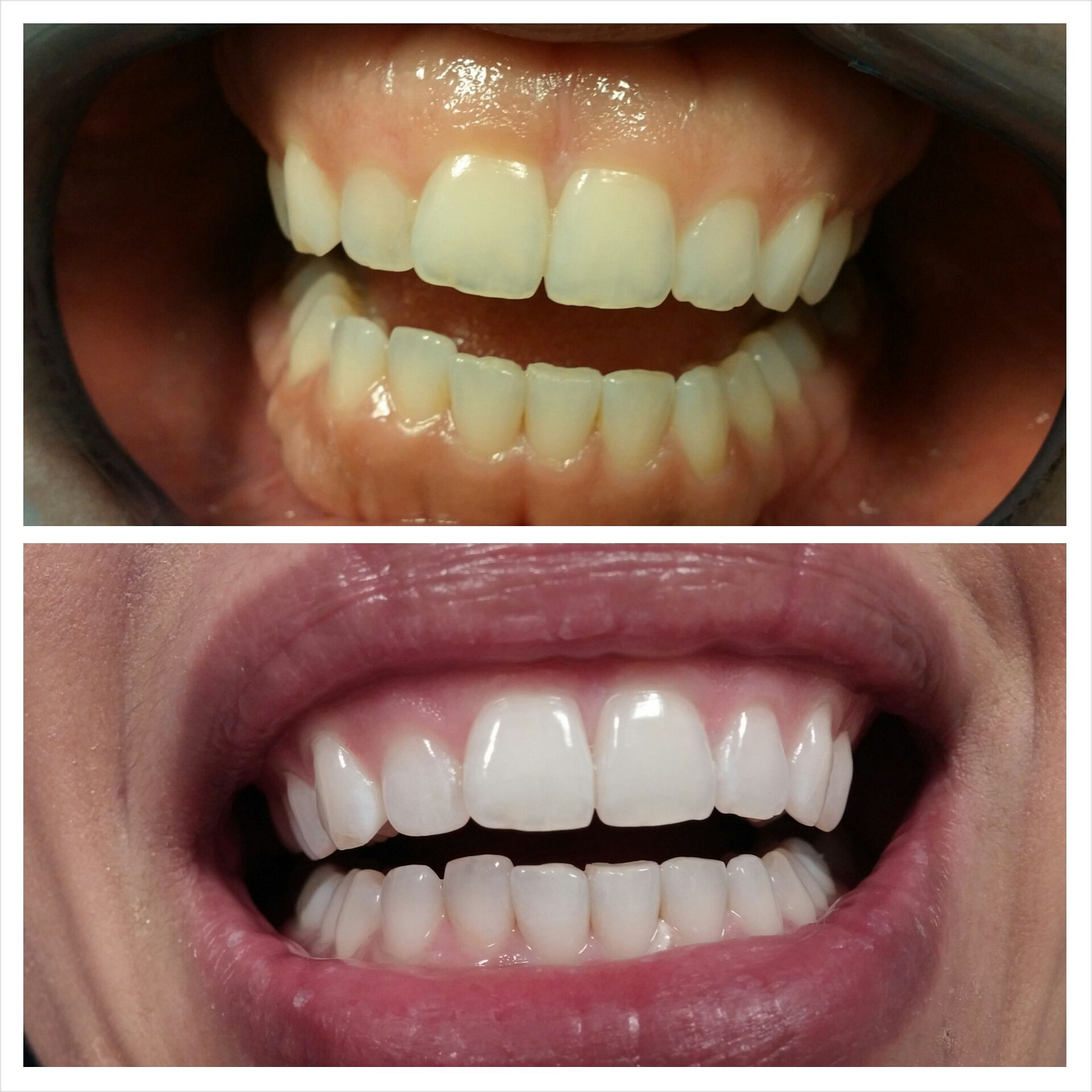 Whitening treatment as is indicated by comparison to the whitening - Here You Can Learn What Should You Know Before Take Laser Teeth Whitening Treatment