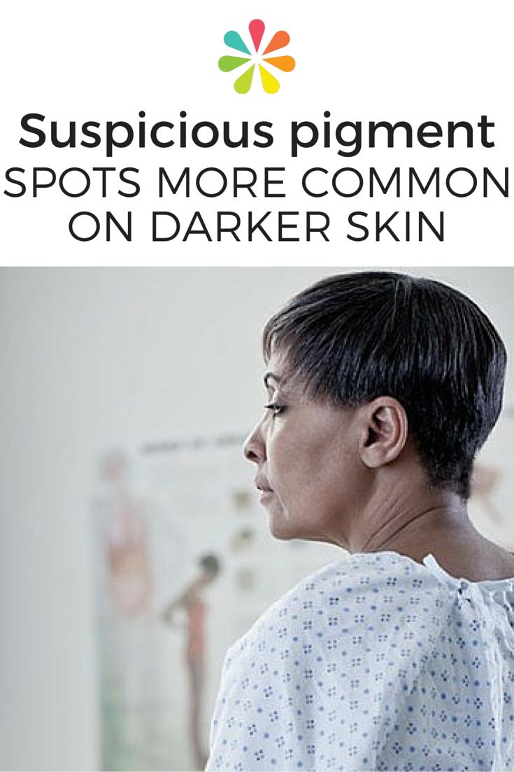 Suspicious Pigment Spots More Common on Darker Skin
