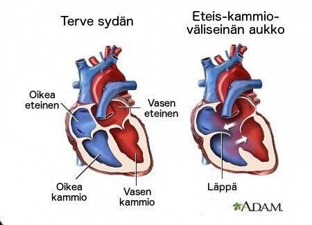 Sydämen sivuäänet ovat yleensä harmittomia, mutta niihin täytyy kuitenkin suhtautua vakavasti.