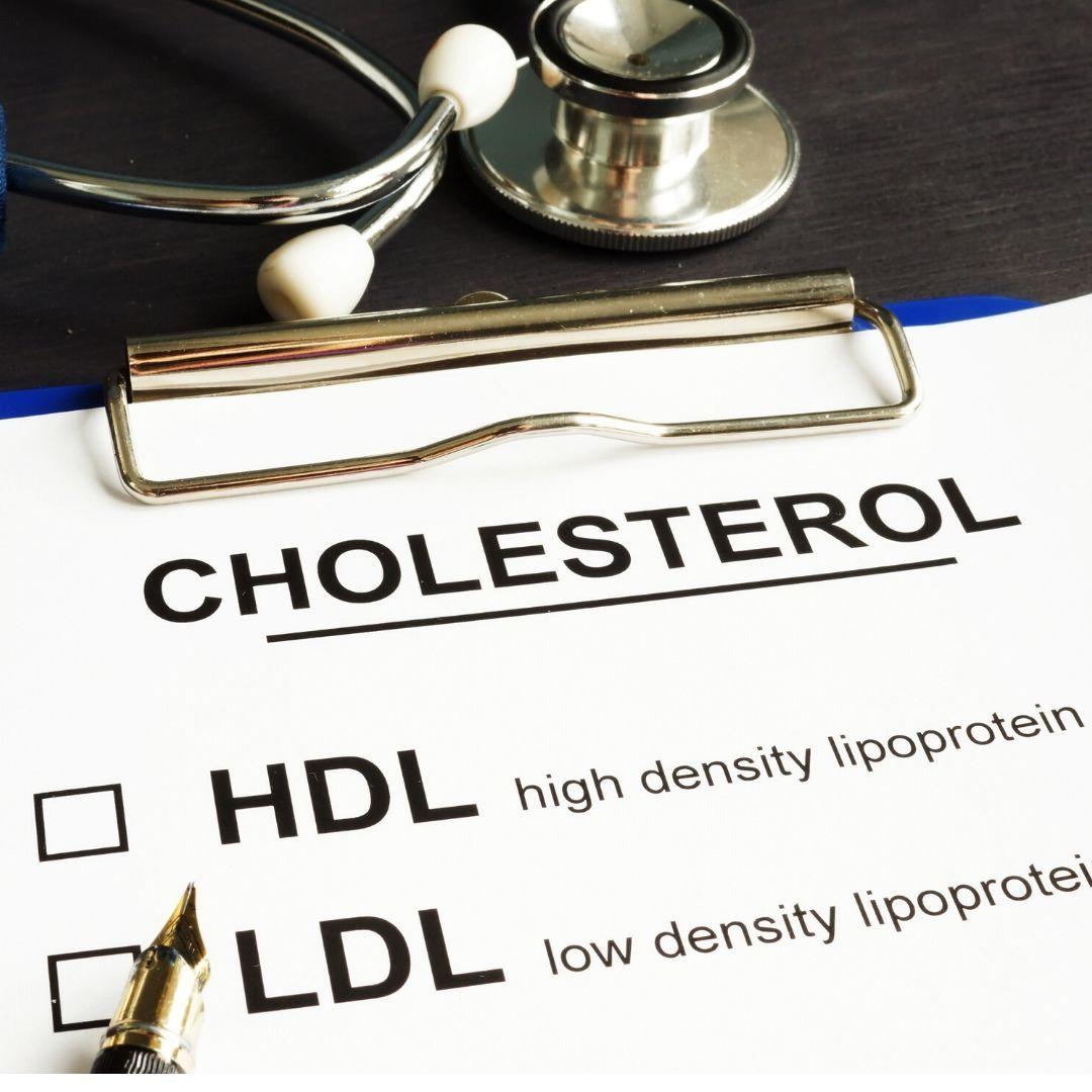 Dr rabin rozehzadeh provides cholesterol management