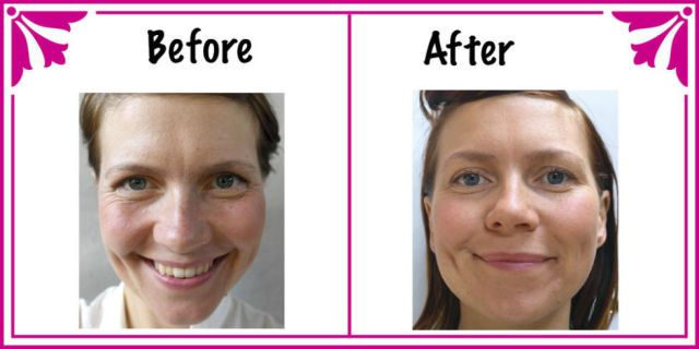 Here S What Drinking 3 Liters Of Water A Day Does To Your Skin Skin Benefits Skin Body Mousse