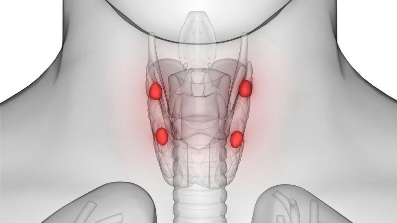 عملية استئصال الغدة جار الدرقية وأسباب إجرائها Parathyroid Disease Hypothyroidism Disease