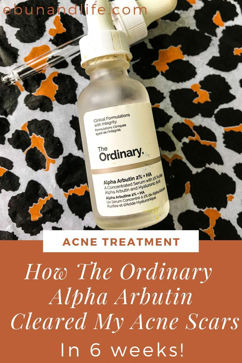 The Ordinary Skincare Alpha Arbutin for Hyperpigmentation