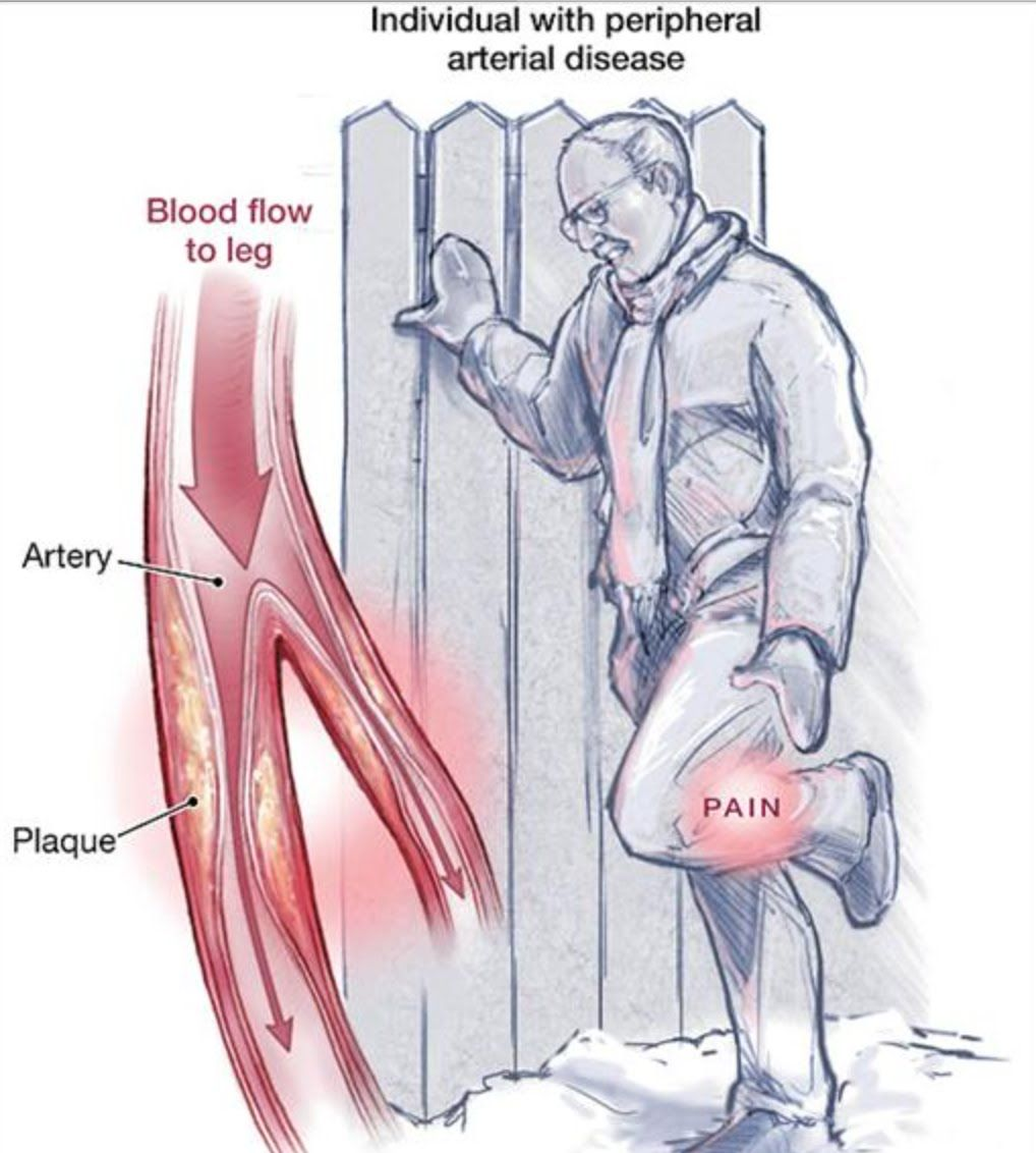 Watch How to Treat Peripheral Artery Disease video