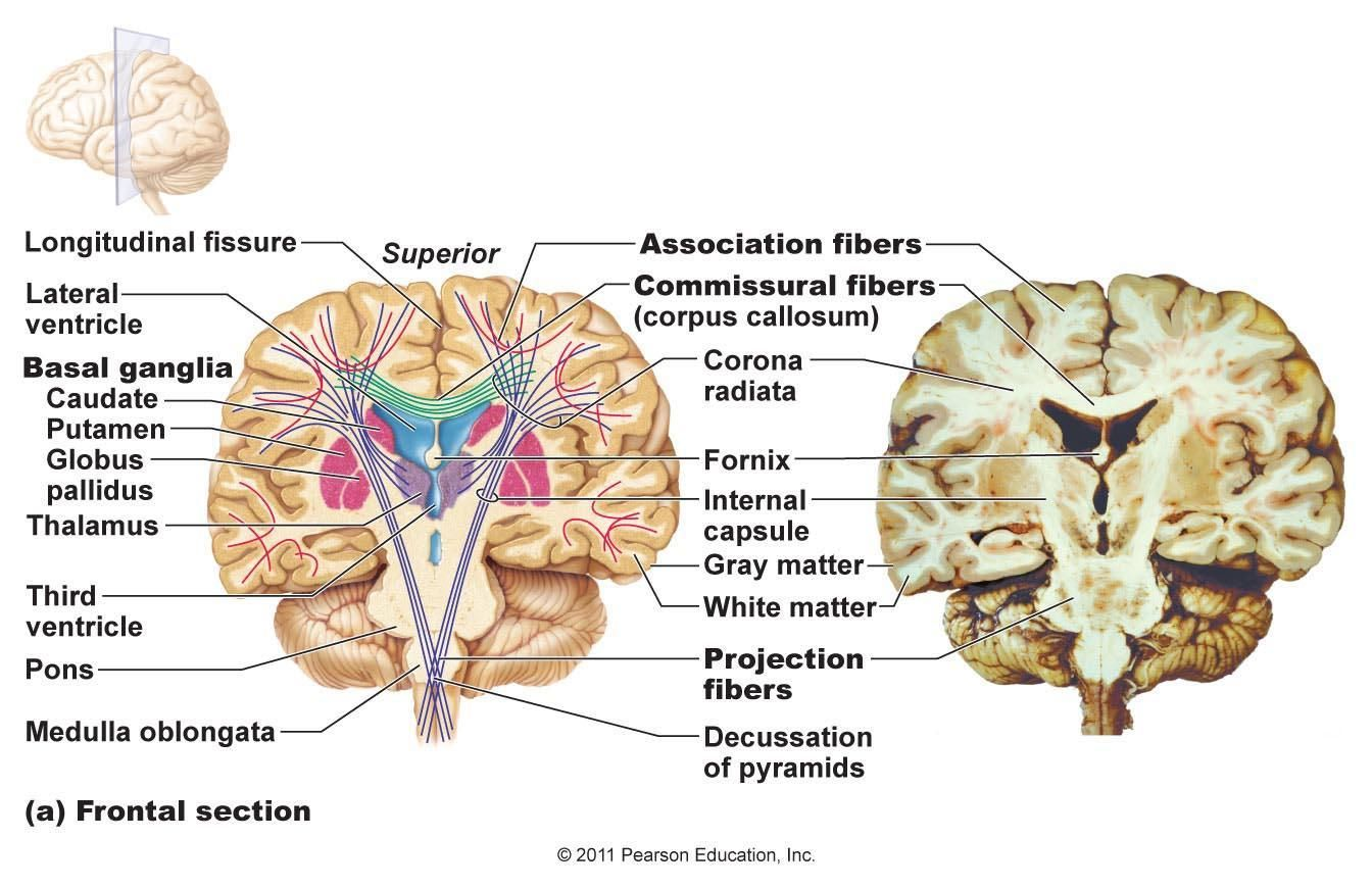 There Are 3 Main Types Of Tracts Located In The White Matter Of The