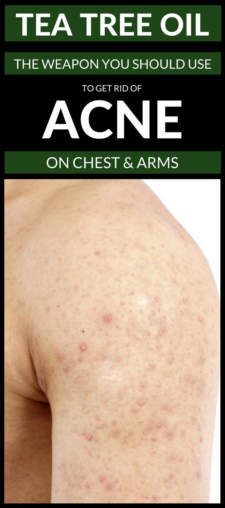 b5d15f6b4f0f381376297435cbf4e095 - How To Get Rid Of Chest Acne And Scars